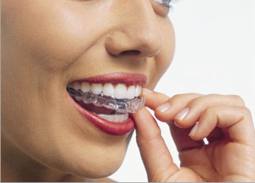 invisalign invisible braces alternative