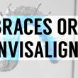 Braces or Invisalign?