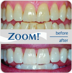 Zoom_Before_After_A