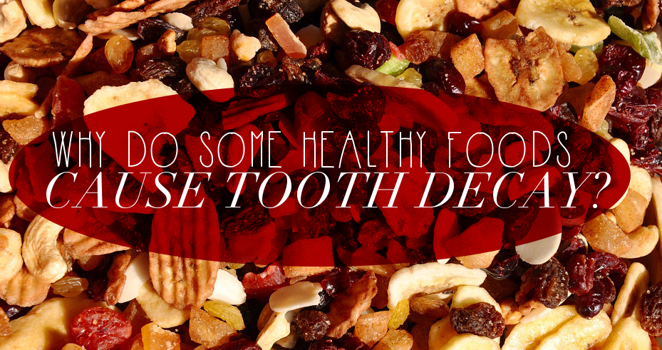 healthyfoodtoothdecay